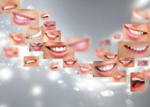 Отбеливание зубов zoom 3
